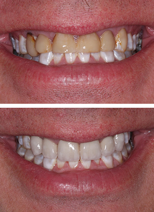 Cosmetic dentistry in Alexandria patient photos