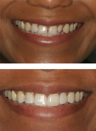 Cosmetic dentistry Alexandria patient photos