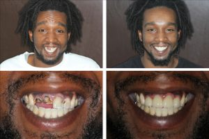 Before and after cosmetic dentistry in Alexandria VA