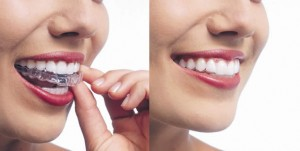 Invisalign in Alexandria and Mt Vernon