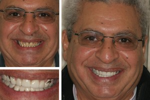Alexandria patient before and after photos with Dr. Geren