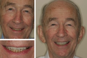 Alexandria dentist patient before and after photos