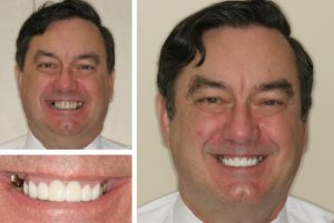 Alexandria dentist near me patient before and after photos