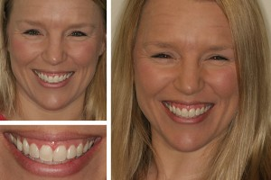 Dr. Geren Alexandria dentist before and after photos
